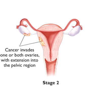 ovarian diagram 4