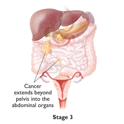 a description of ovarian cancer of all gynecological malignancies