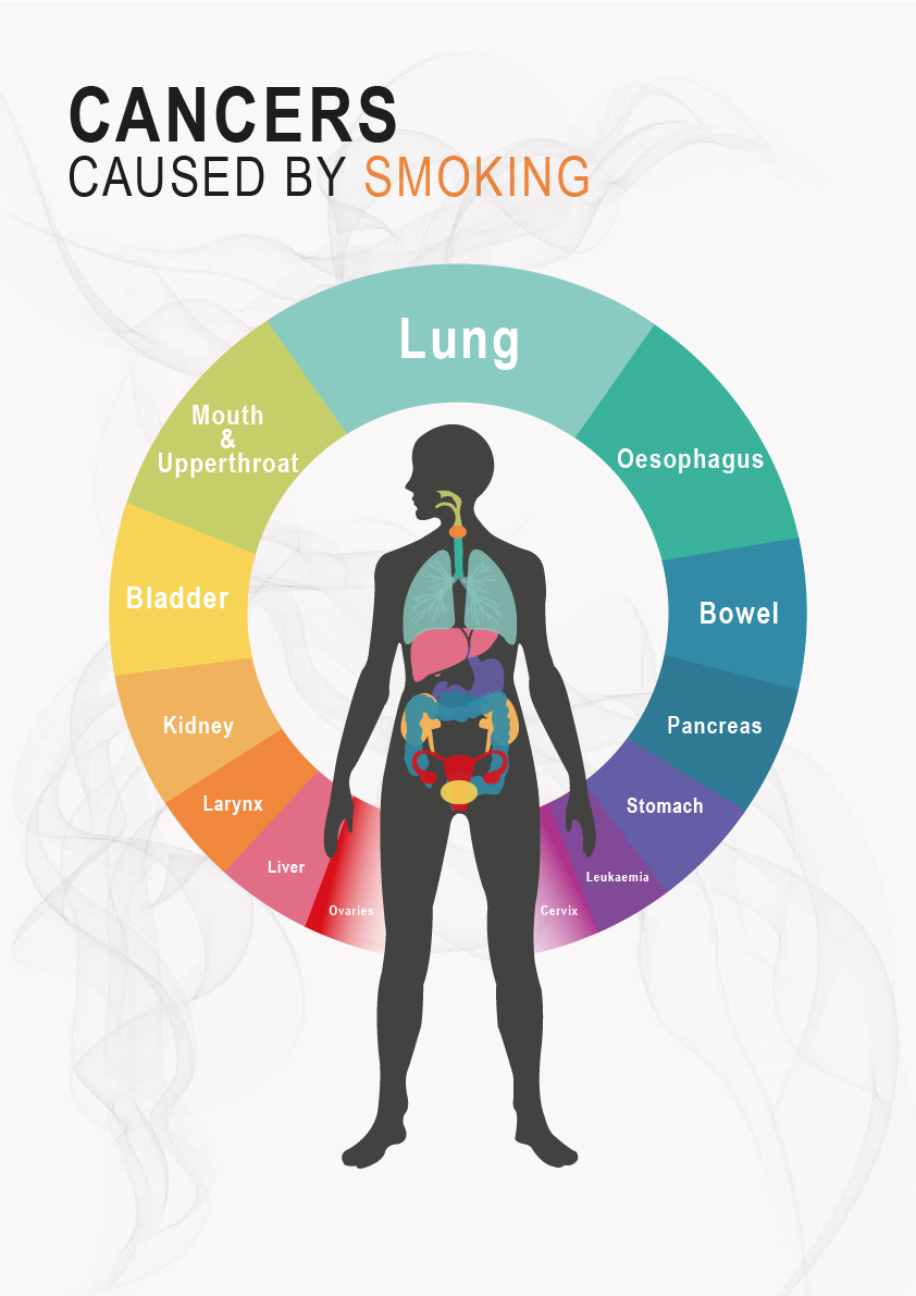 cancers caused by smoking